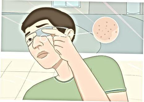 Undgå at irritere din hud