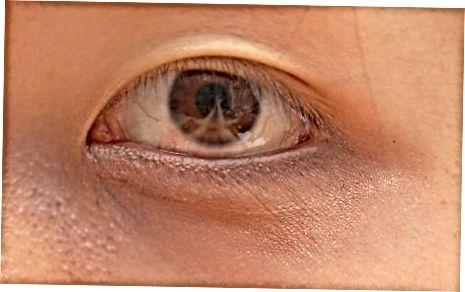 Método Eyeliner